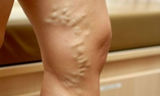 signs and symptoms of varicose veins in the legs
